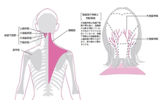 頭痛の原因が岡山市の整体院で分かった